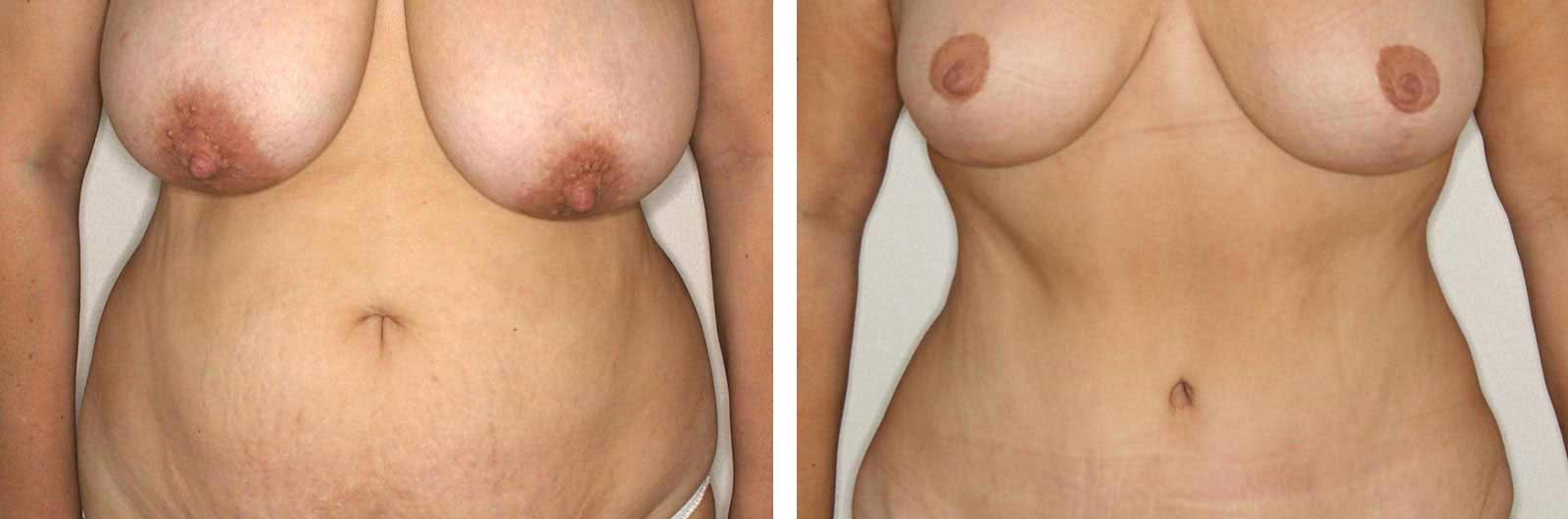 ELMA-liposuccion-abdominoplastia