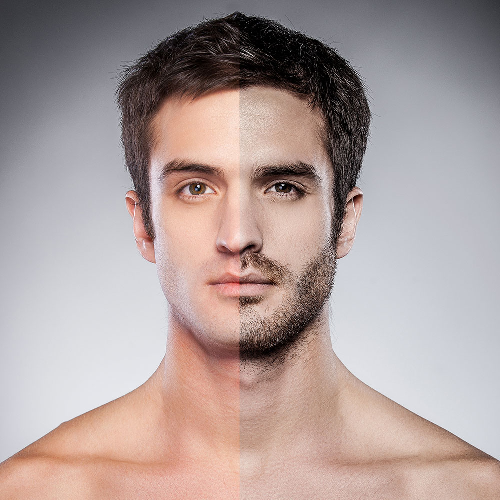 Implante de barba. Antes y después. - Instituto Vila Rovira
