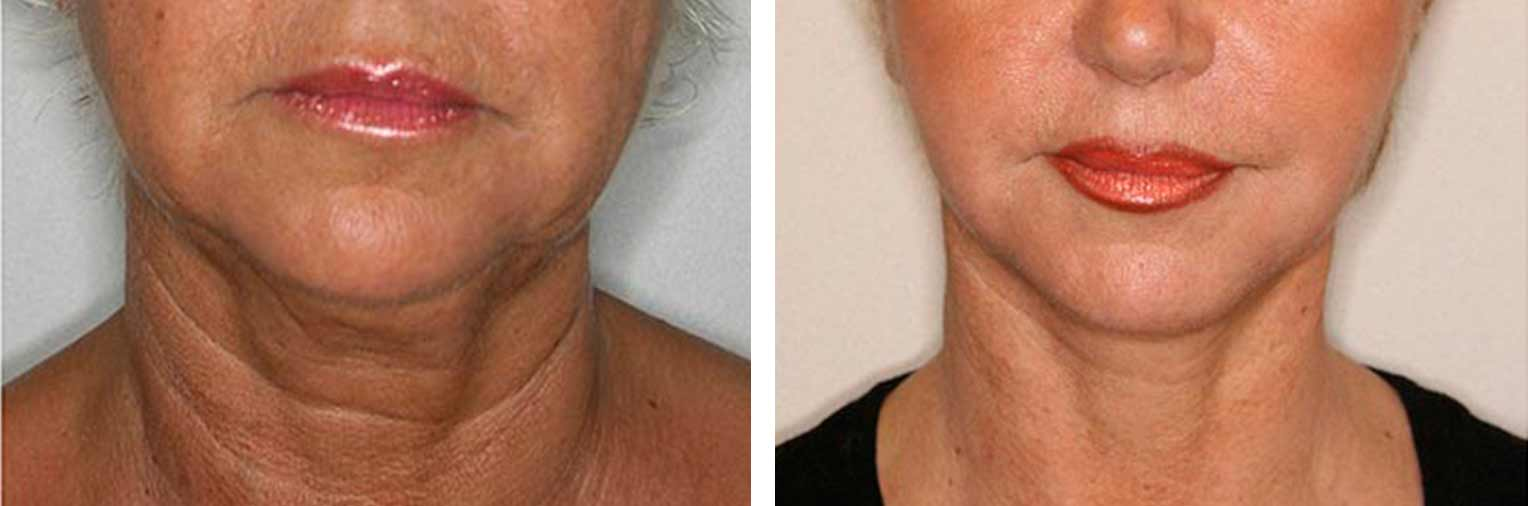 Antes y después lifting facial Vilarovira